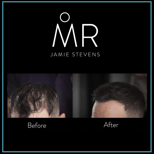 Fibre de par MR Jamie Stevens - MR Jamie Stevens